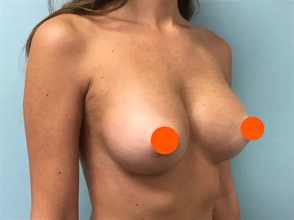 Before and after breast implants orlando florida Dr. Oppenheimer