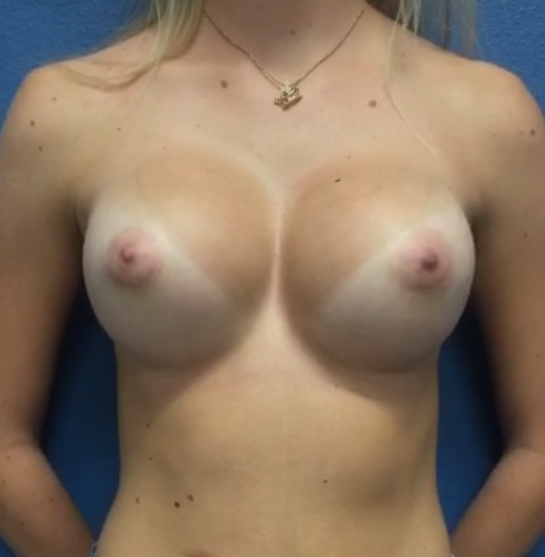 breast aug by Dr. oppenheimer