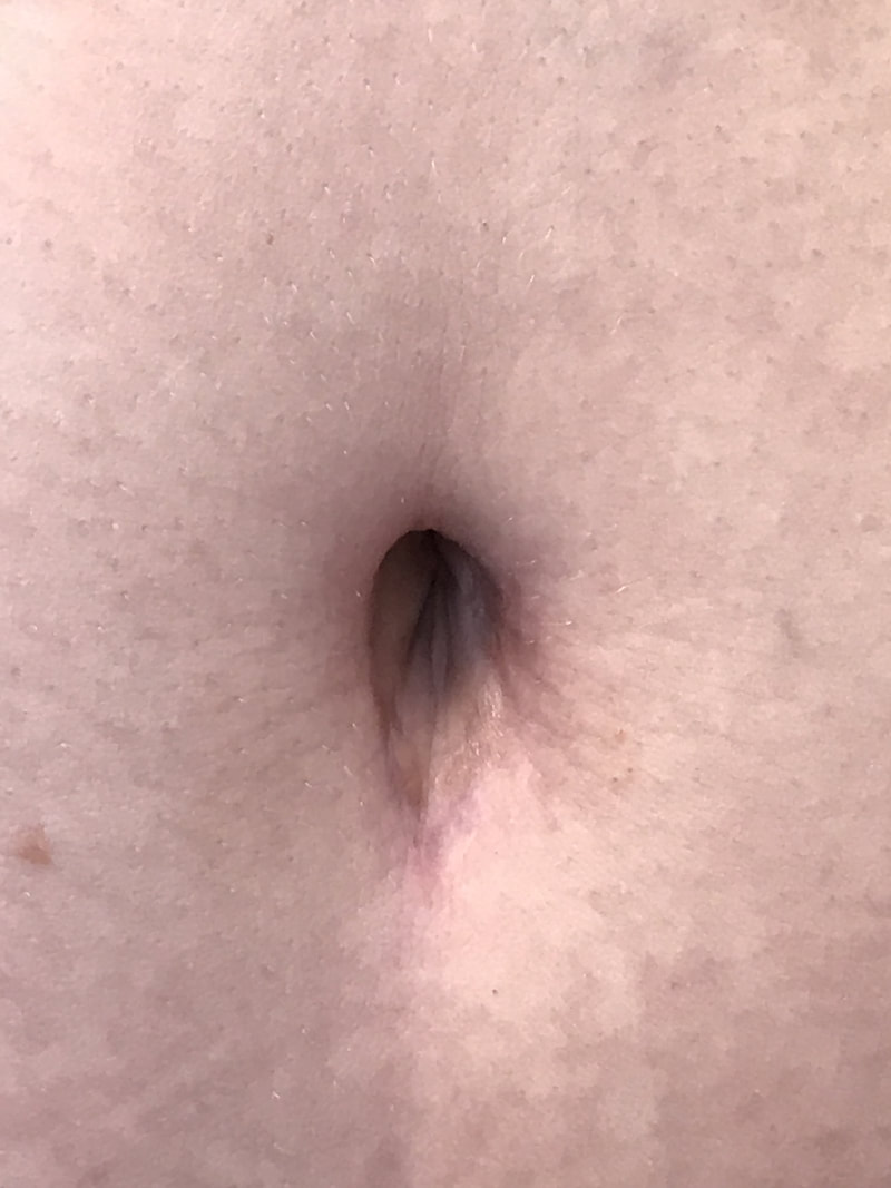 cute belly button after tummy tuck by Dr. OPP!
